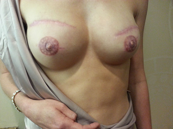 TKot-FINAL-AREOLAS-3-mos-a2-Aug-2014-(13)