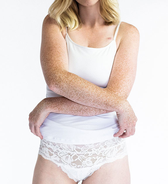 Everviolet post mastectomy bras for breast cancer patients as featured on Lingerie Briefs